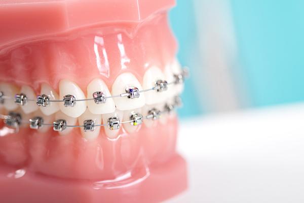 apparecchio dentale classico